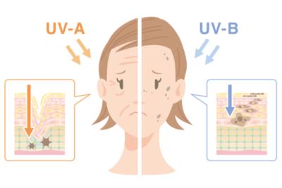 紫外線による肌の老化